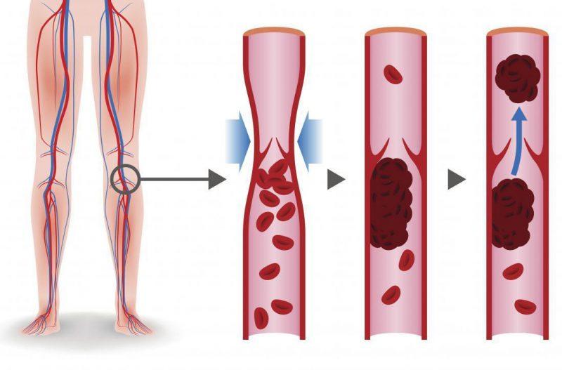 Viêm tắc động mạch chi là gì? Triệu chứng và phương pháp điều trị viêm tắc động mạch chi.